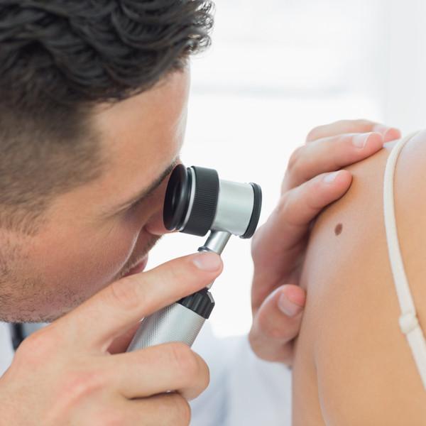 skin-cancer-malanoma