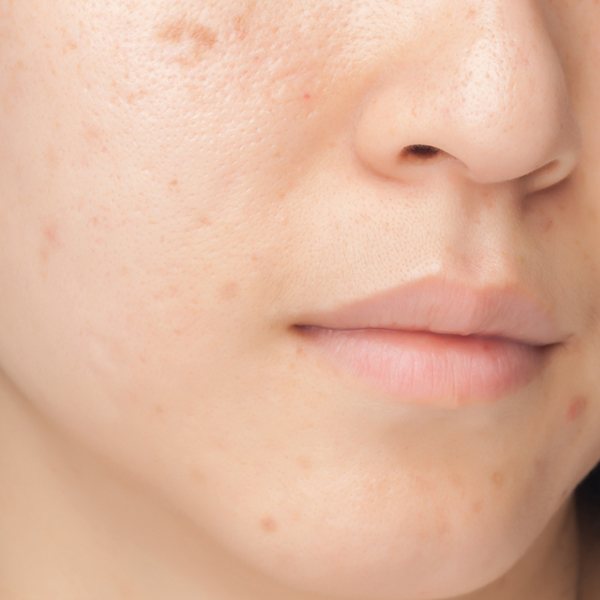 FIELD TREATMENTS FOR SUNSPOTS