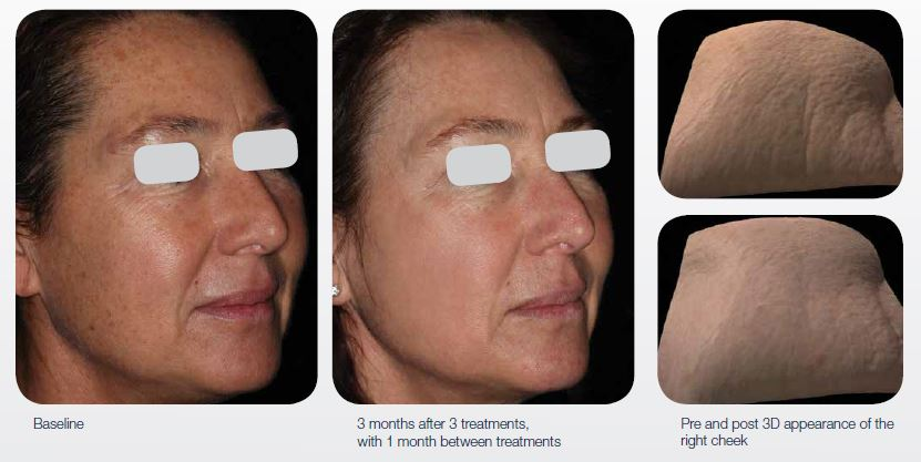 ablative-resurfacing-cosmetic-rejuvenation-01