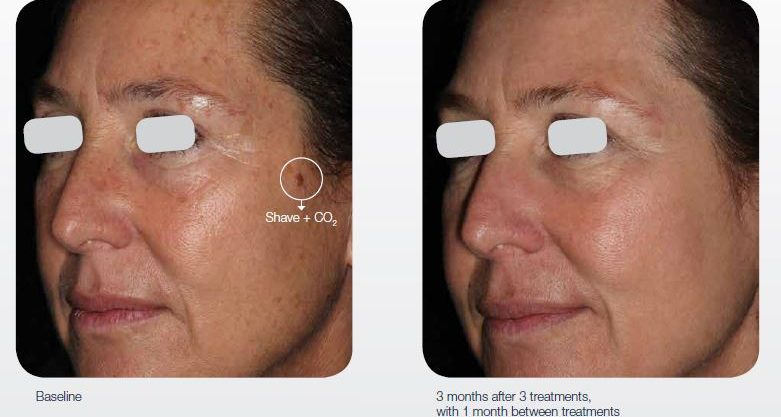 ablative-resurfacing-cosmetic-rejuvenation-02