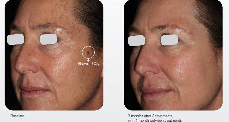 ablative-resurfacing-cosmetic-rejuvenation-02