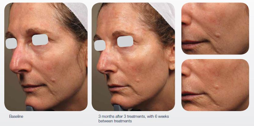 ablative-resurfacing-cosmetic-rejuvenation-03