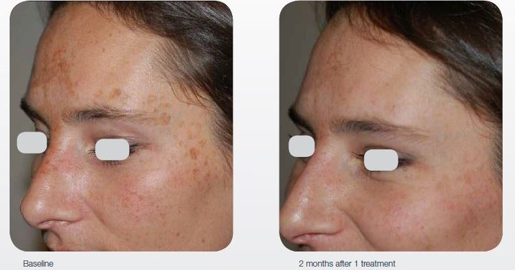 acne-surgical-scar-treatment-01