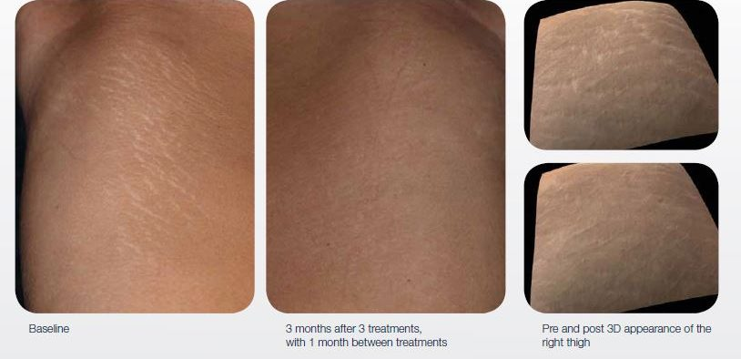 acne-surgical-scar-treatment-02